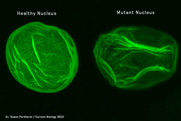 A healthy nucleus (left) and a mutant nucleus (right)