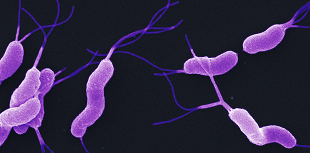 Bug out: Killing common bacterial may curb stomach cancer