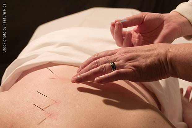 Breast cancer patient getting acupuncture