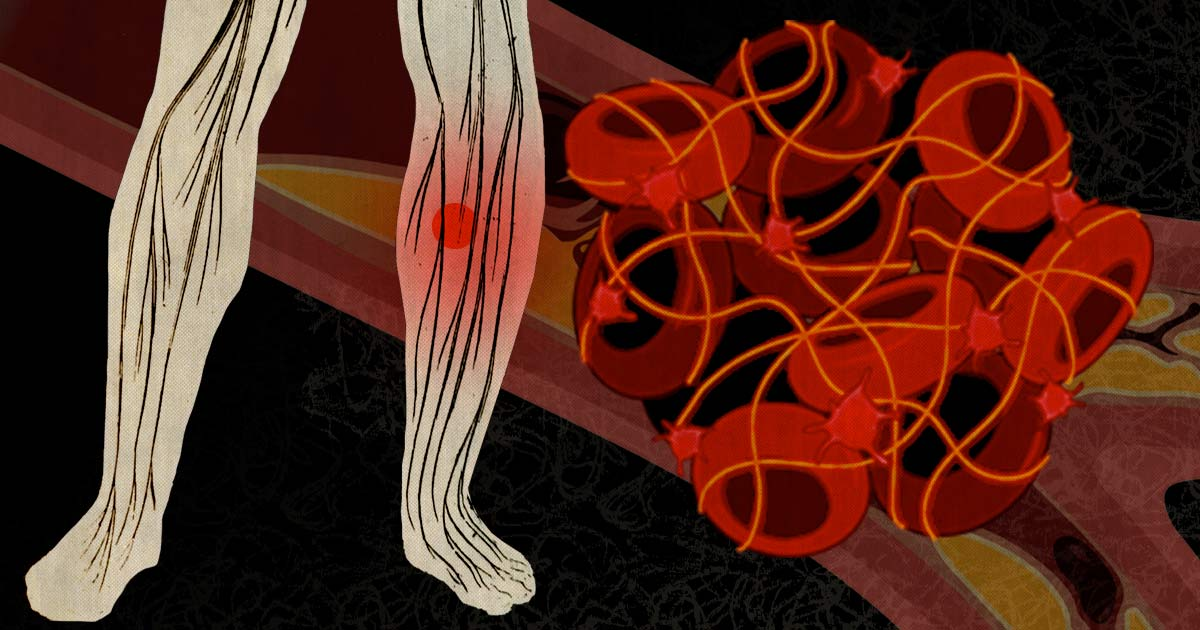 Blood clots: What cancer patients need to know