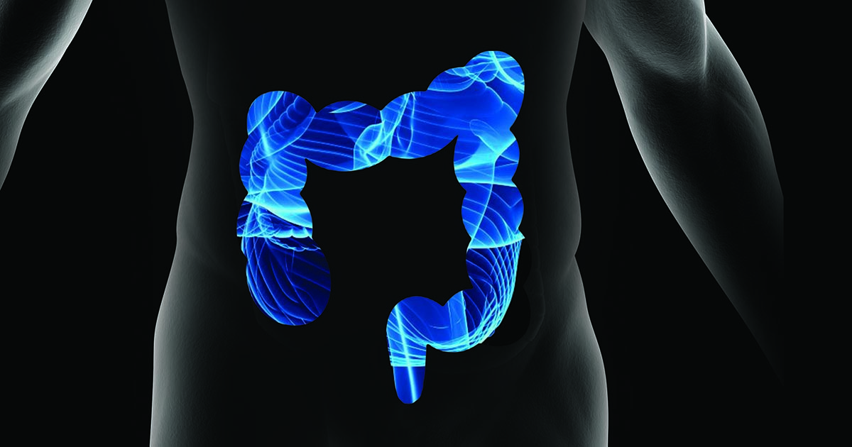 6 Misconceptions About Colorectal Cancer