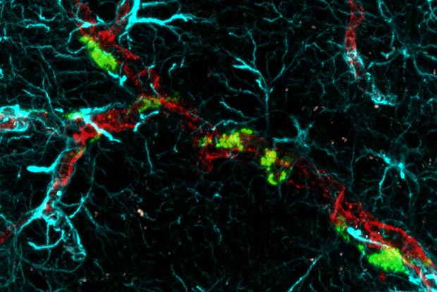 Targeting Brains Star Shaped Cells May >> The Science Of Cancer Spread