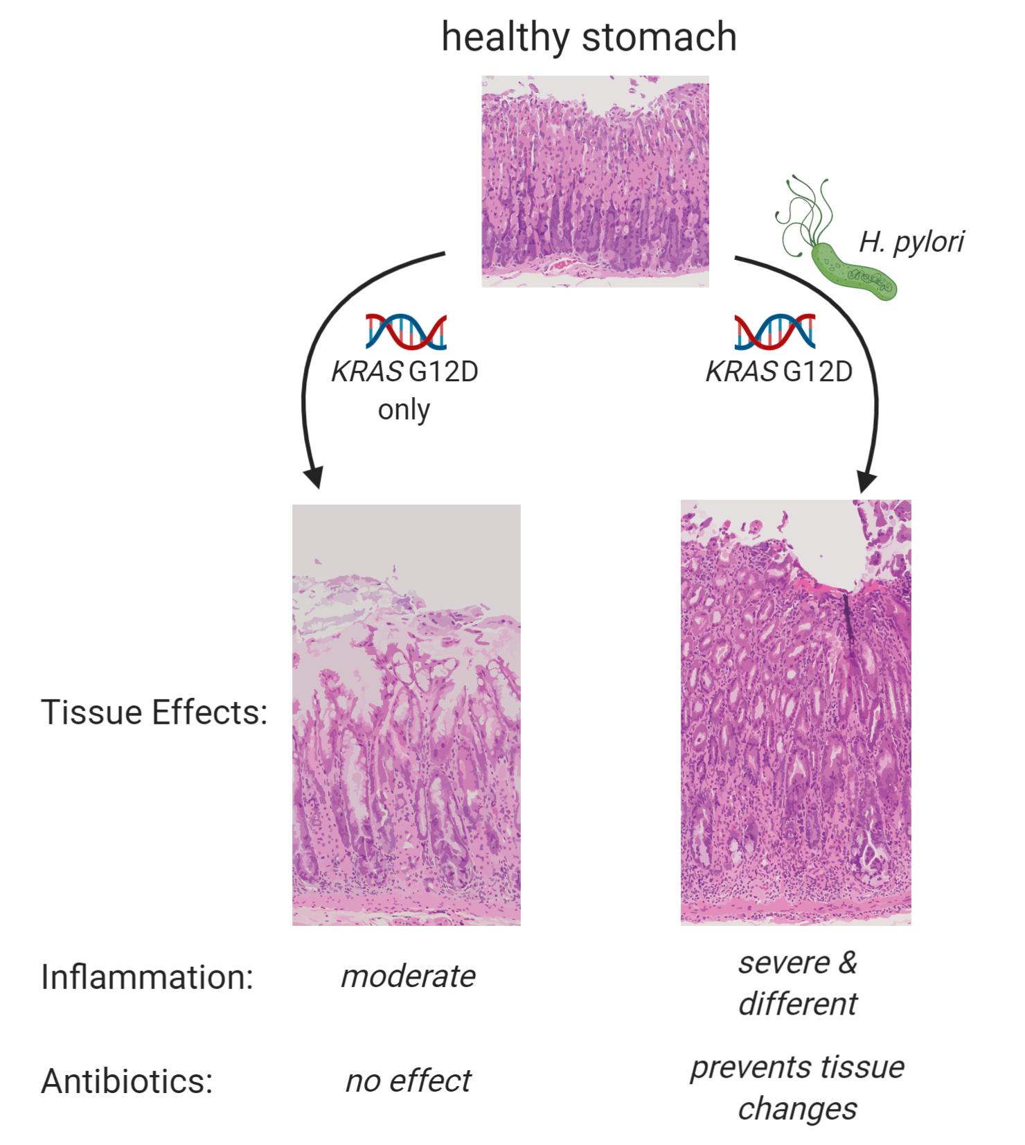 Gastric cancer kras mutation, Cod de căutare giardia