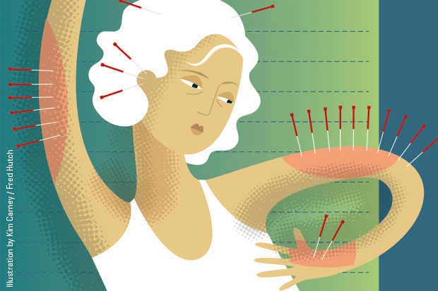 Illustration of woman getting acupuncture to treat joint pain