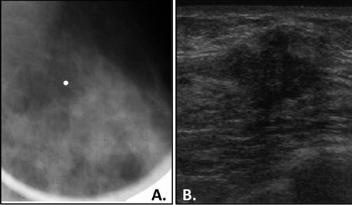 Breast Imaging In Symptomatic Younger Women Ultrasound Vs Mammogram