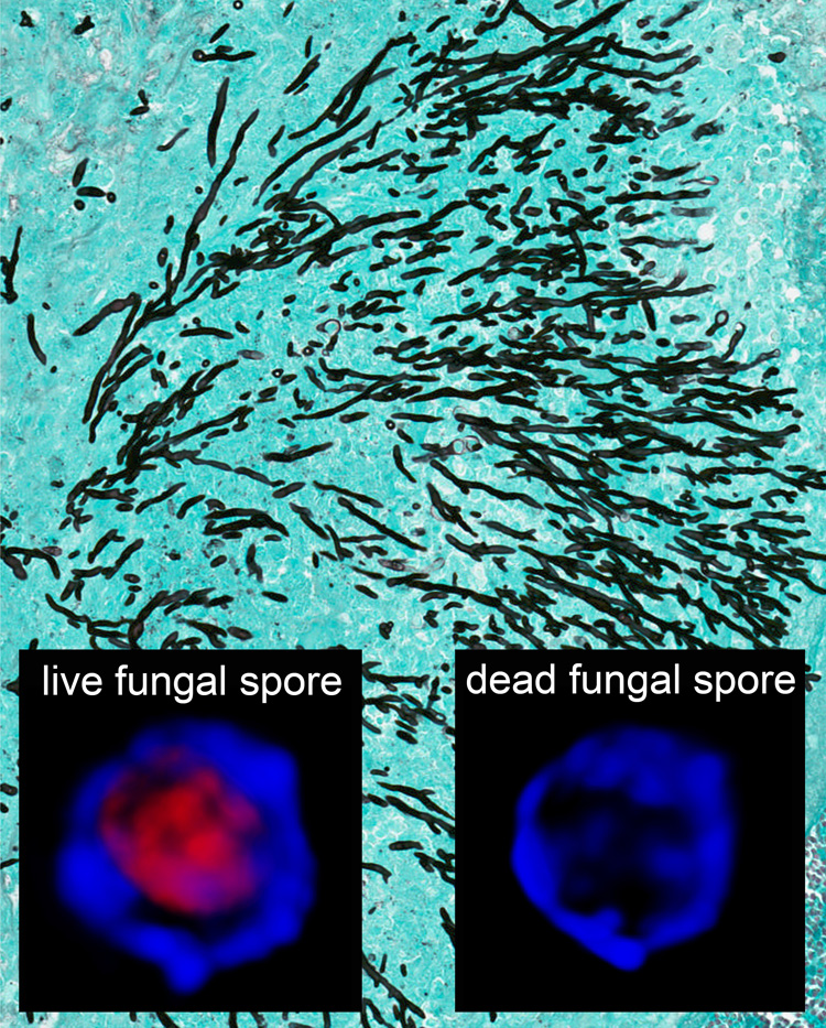 Imaging A Fungal Lung Infection That Affects The Immune