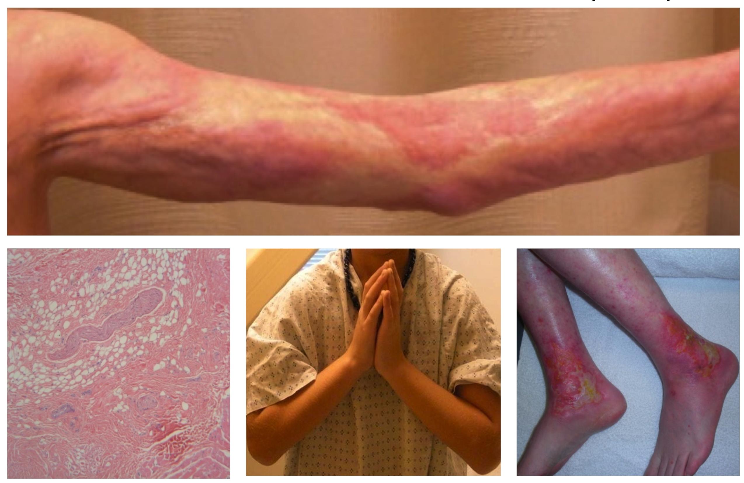 Image result for mucocutaneous graft vs host