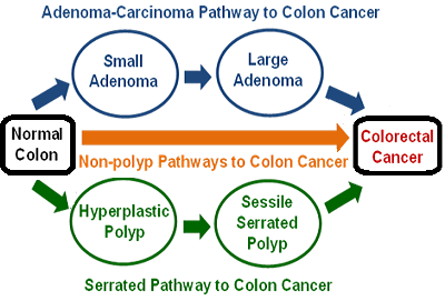 pathways to colorectal cancer