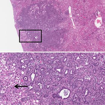 tumor slide