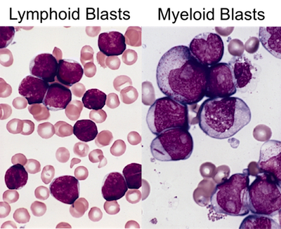 Micrographs of cancerous lymphoid and myeloid cells
